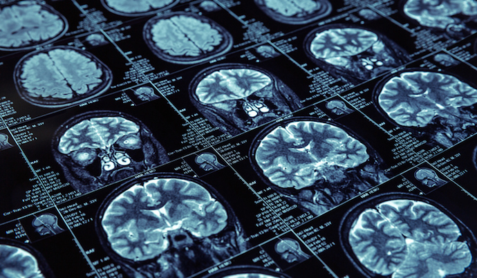 Artificial intelligence for medical imaging market