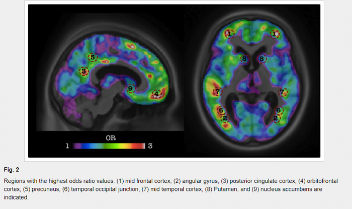 Imaging analytics and machine learning algorithm for Alzheimer's disease diagnosis